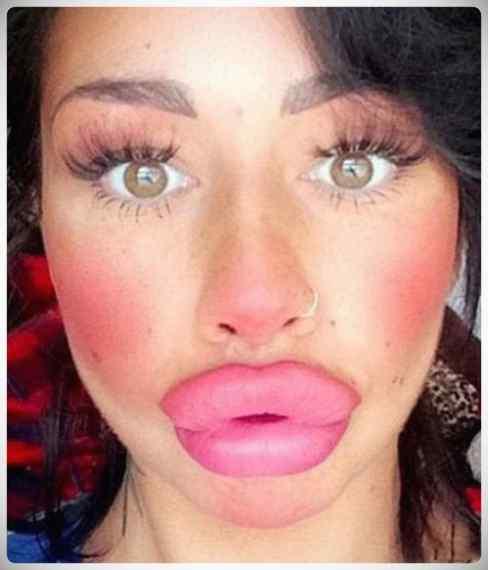 ¿Que extraño virus esta atacando los labios de las chicas? 8