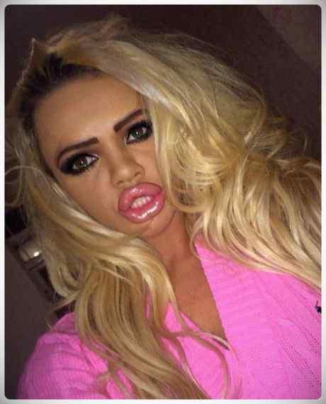 ¿Que extraño virus esta atacando los labios de las chicas? 9