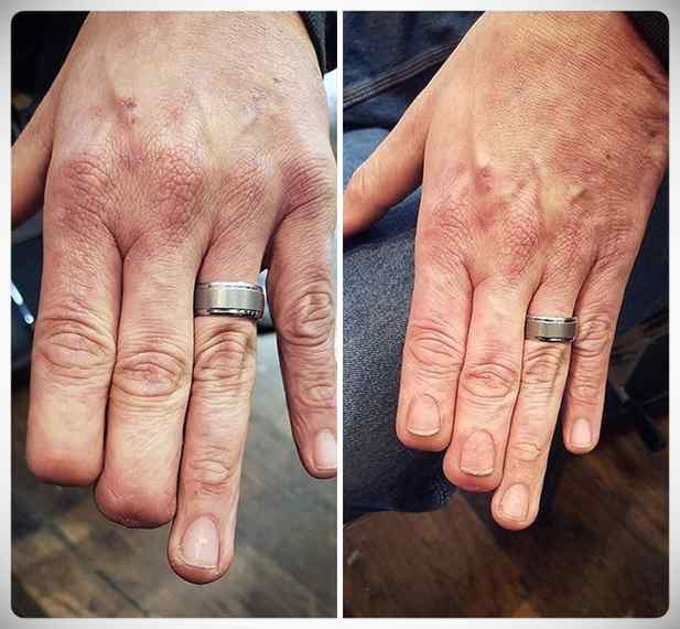 Imágenes de tatuajes usados para tapar cicatrices. 15