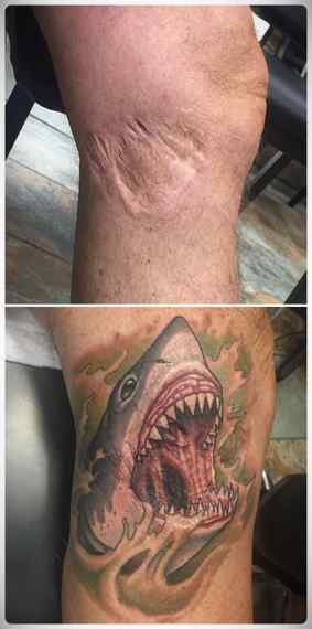 Imágenes de tatuajes usados para tapar cicatrices. 11