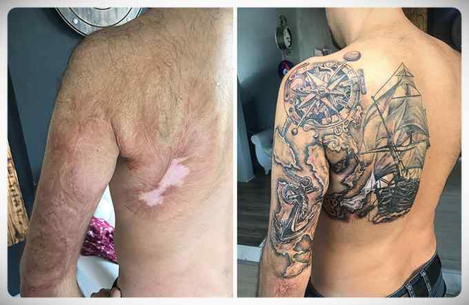 Imágenes de tatuajes usados para tapar cicatrices. 13