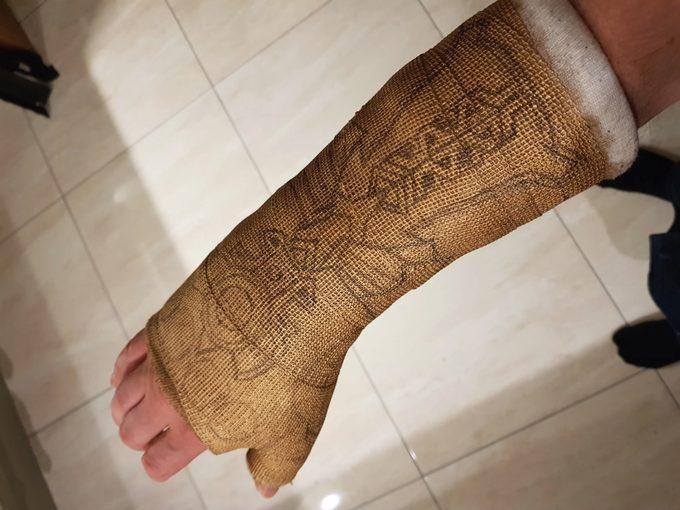 Convierte la escayola de su brazo en el guantelete de Thanos. 3