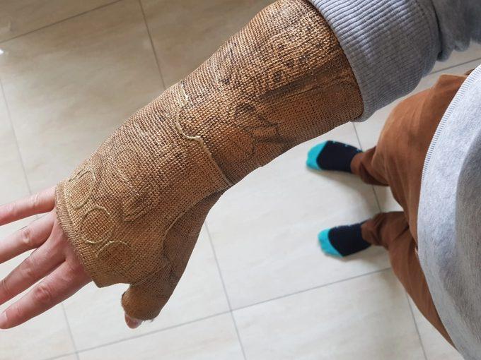 Convierte la escayola de su brazo en el guantelete de Thanos. 4
